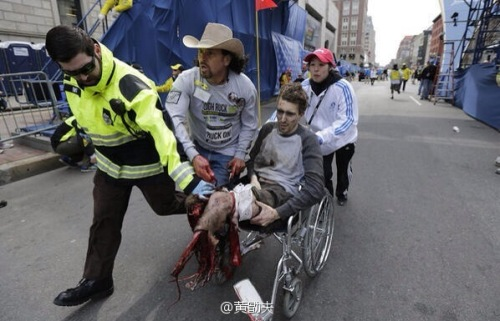boston-marathon-bombing-man-missing-leg-wheelchair